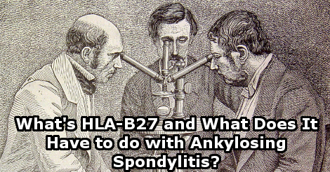 what 39 s hla b27 and what does it have to do with ankylosing spondylitis. Black Bedroom Furniture Sets. Home Design Ideas